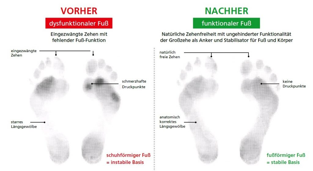 Dysfunktionaler und funktionaler Fuß